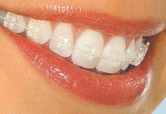 Aparat dentar clasic sau aparat dentar invizibil?