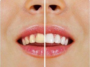 Tipuri de pete ce pot aparea pe dinti si cum sa le indepartati