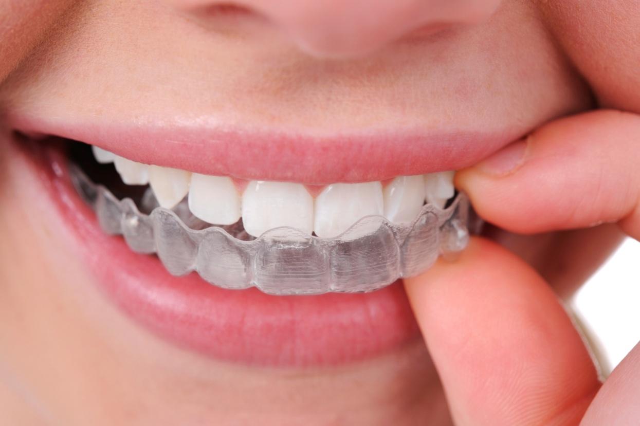 Sfaturi utile pentru cei care poarta aparat dentar