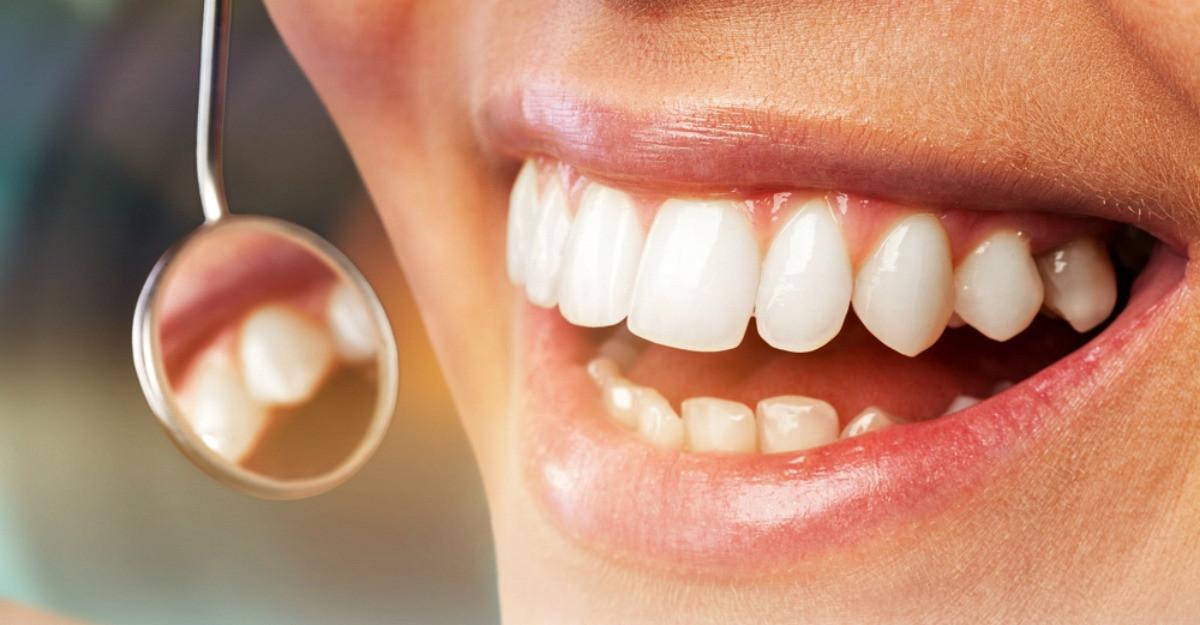 Ce este parodontoza?