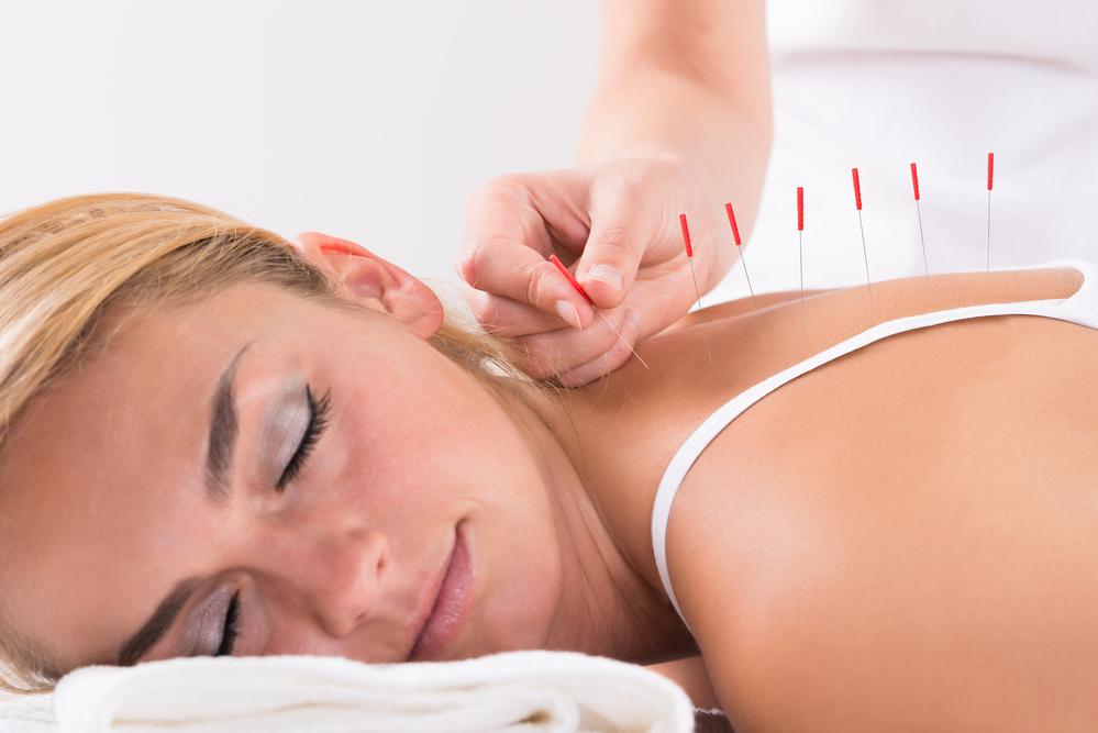 Ce trebuie sa stii despre terapia prin acupunctura