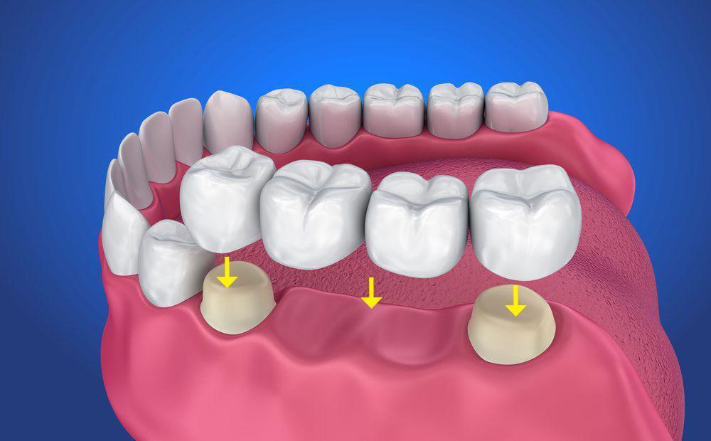 De cate tipuri sunt coroanele dentare?
